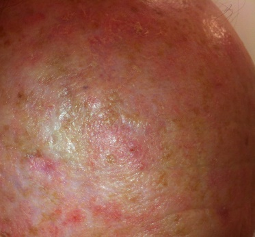 Keratosis skin cancer pictures