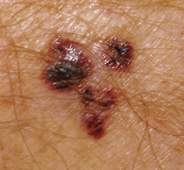 Melanoma superficial spreading