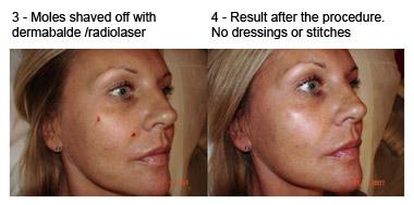 cheek mole removal results