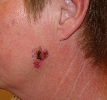 melanoma neck