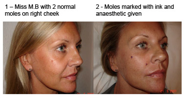 mole removal cheek