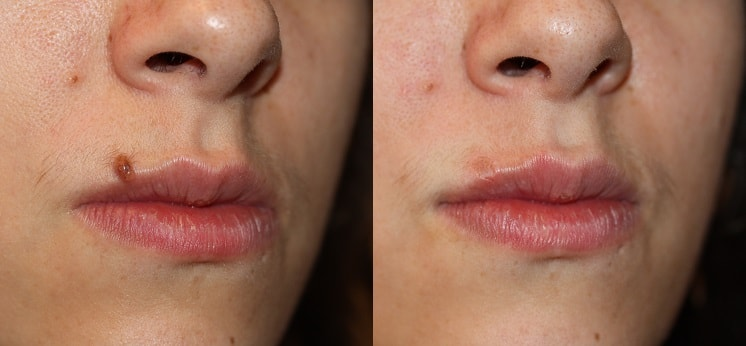 Before Amp After Photos London Mole Removal Centre