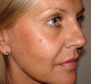 Mole removal surgery | London Mole Removal