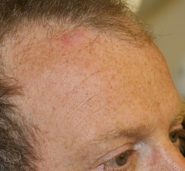 sebaceous cyst removal after