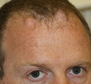sebaceous cyst removal before