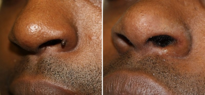 nose wart removal