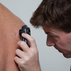 mole check