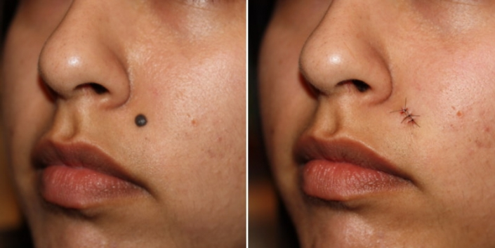 before and after mole removal stitches